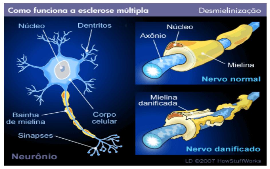 desmieliniazação esclerose multipla